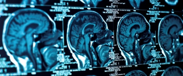 brain injury lawyer frank giunta